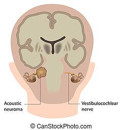 acústico, eps10, neuroma