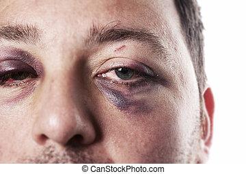 accident, oeil, violence, isolé, noir, blessure