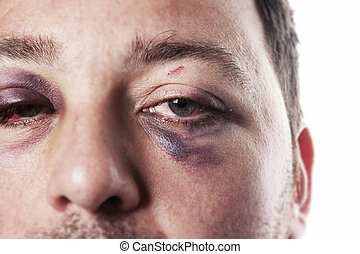 accidente, ojo, violencia, aislado, negro, lesión