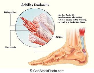 achille, tendonitis