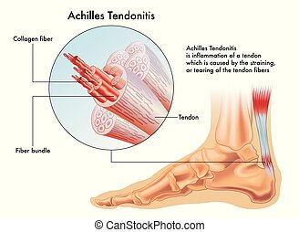 Achilles Tendonitis - A vector medical illustration of the...