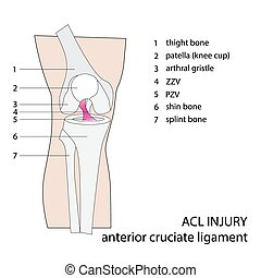 acl knee injury - ACL. anterior cruciate ligament. vector...
