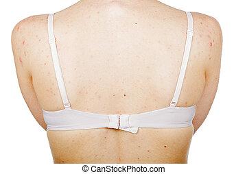 acné, espalda, hembra, piel