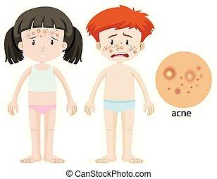acné, garçon, girl, problème
