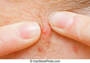 acné, serrage
