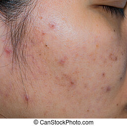 Acne and acne spot on oily face skin of Asian woman. Concept before acne treatment and face laser treatment for get rid of dark spot post-acne. Closed comedones and open comedones on facial skin