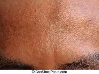 acne, fronte