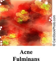 acne., fulminans., acné, vector, granos, illustration., infographics., skin., furuncle., cístico, pustules