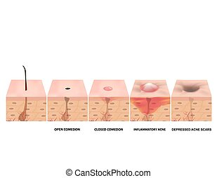 acne., illustration, isolé, structure, infographics.,...