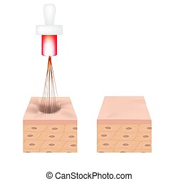 Acne scars. Laser scar atrophic treatment. The anatomical structure of the skin with acne. Vector illustration on isolated background.