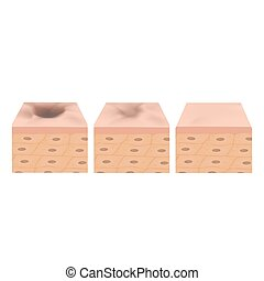 Acne scars. Scar atrophic treatment. The anatomical structure of the skin with acne. Vector illustration on isolated background