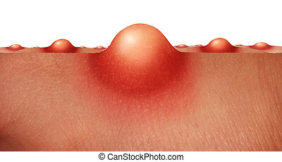 Acne skin health care concept as a group of pimples or sores on human skin as a medical anatomy symbol for a skincare epidermis disorder on a white background.