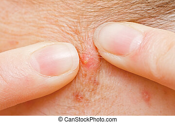 Acne squeezing - Squeezing pimple to clean the skin closeup