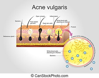 Acne vulgaris is a long-term skin disease that occurs when hair follicles become clogged with dead skin cells and oil from the skin. Acne is characterized by areas of blackheads, whiteheads, pimples, and greasy skin, and may result in scarring.