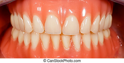 Acrylic removable dentures - Close up photo of acrylic...