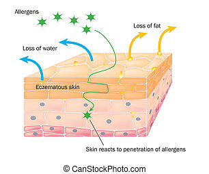 Action of eczema on skin - Skin showing changes due to...