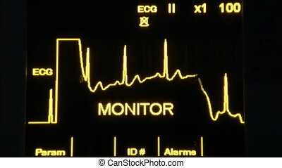 real EKG monitor and faster, shooting Canon 5D Mark II