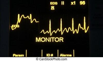 actual EKG monitor slowmotion - real EKG monitor and...