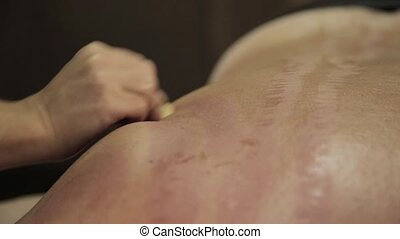 acupressure on a male back with scraper gouache. Chinese...
