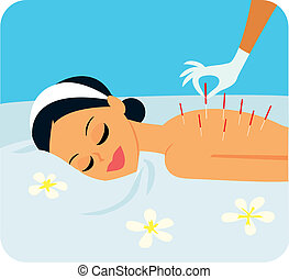 Illustration of woman receiving acupuncture