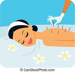 acupuncture, illustration
