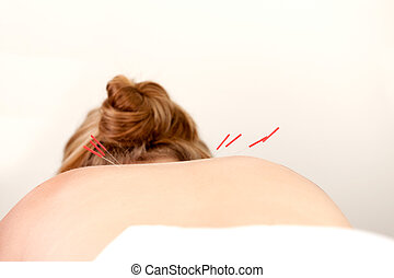 Acupuncture Needles on Back - Female patient with...