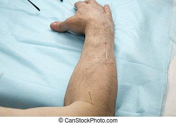 Acupuncture Patient Treatment