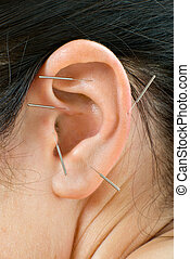 acupuncture therapy on auricle, vertical very close up photo
