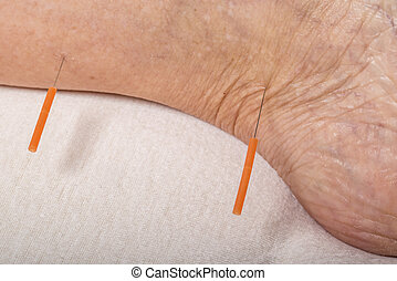 acupuncture treatment on leg