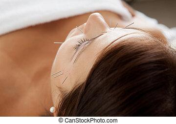 acupunctuur, gezichts, beautybehandeling