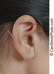 acupuntura, aurícula, terapia