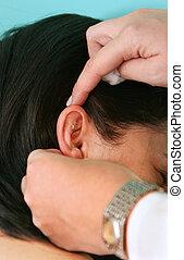 acupuntura, tratamento