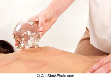 acupunturista, el quitar, fuego, cupping, bombilla