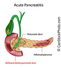 Inflammation of the pancreas caused by gallstone