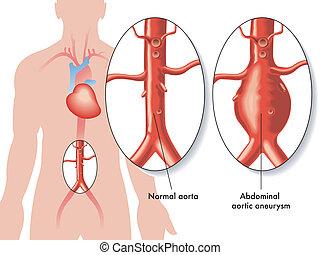 addominale, aneurisma, aortico