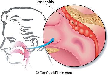 adenoids - medical illustration of the adenoids