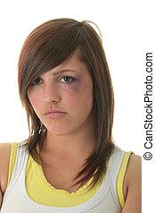 adolescent, abusé, girl