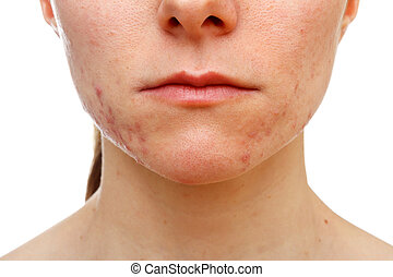 Adolescent girl suffering in acne - Portrait of young girl...