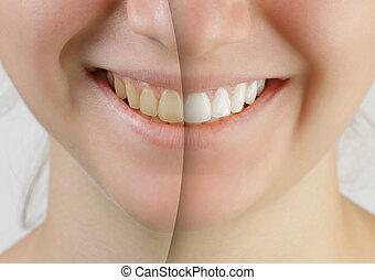 adolescente, após, whitening, dentes, sorrizo, menina, antes de