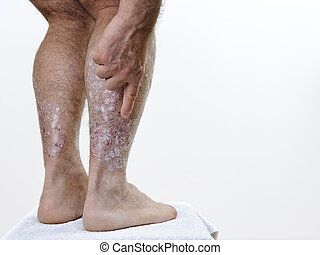 Adult Caucasian man suffering from psoriasis in the legs