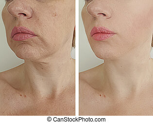 adult woman wrinkles before and after treatment