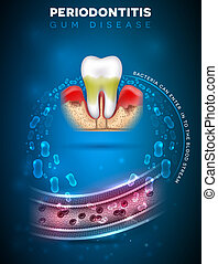 affiche, periodontitis, complications