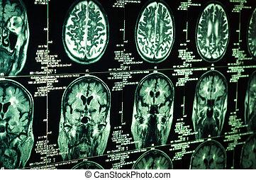 afsøge, meget, hjerne, grønne, menneske, skarp