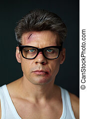 After fight - Portrait of man with bruised face looking at...