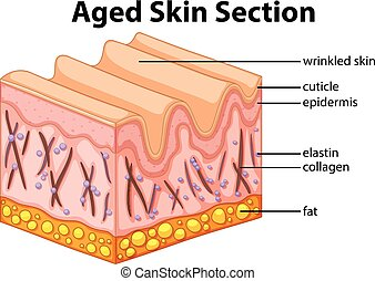 Aged skin section diagram illustration