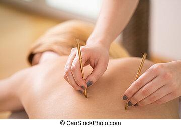 agopuntura, trattamento