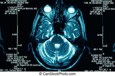 agudo, exploración del ct, de, el, cerebro humano