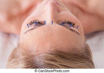agulha acupuntura, mulher, terapia, recebendo