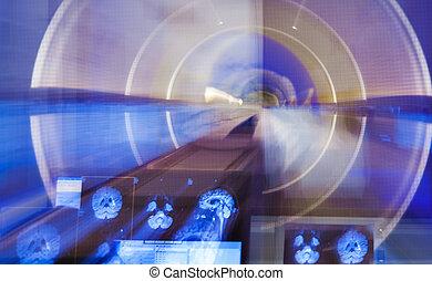 agyonüt scanner, röntgen, elhomályosít