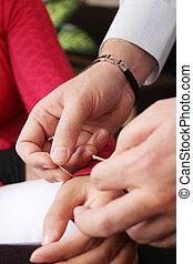 akupunktur, utföre, terapi, hand